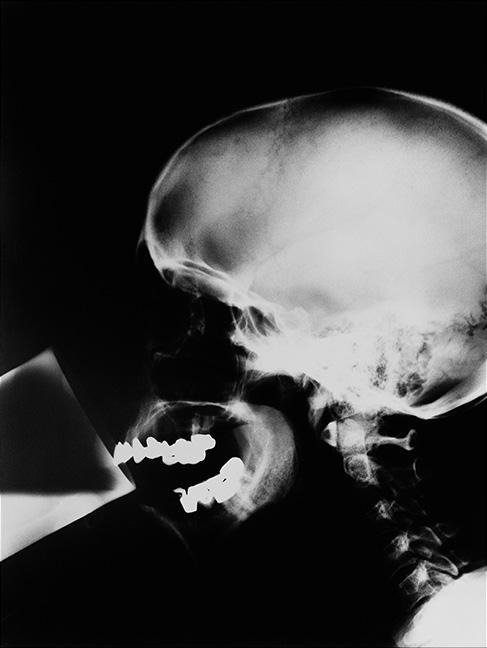Isa Genzken [1991] X-Ray. Gelatin silver print, 100 x 80 cm.