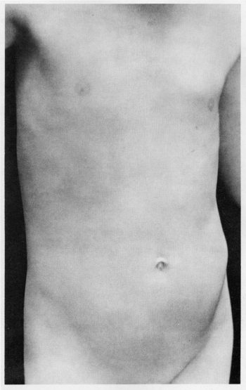 Sherrie Levine [1980] Untitled (After Edward Weston). Gelatin silver print.